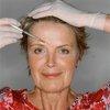 botox injekce žena 3