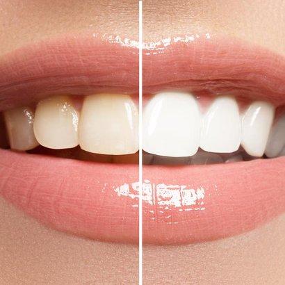 Zpověď zubaře